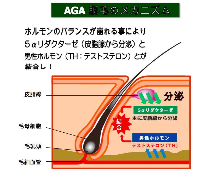 「AGA メカニズム」の画像検索結果
